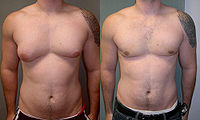 man-boobs-severe-asymmetric-gynecomastia