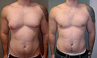 man-boobs-severe-asymmetric-gynecomastia