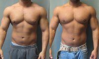 man-boobs-body-builder