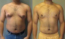 man-boobs-asymmetrical-gynecomastia .